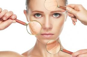 3 bệnh phổ biến ở da mà chị em nào cũng sợ gặp phải và cách xử lý để có làn da khỏe mạnh, xinh đẹp