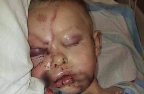 Bức ảnh kinh hoàng chụp bé trai bị biến dạng khuôn mặt vì 2 con chó tấn công