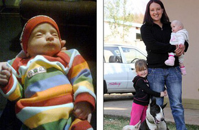 Bé sơ sinh sau 5 tháng chào đời mới phát hiện ra giới tính thật vì 1 nguyên nhân cực hiếm