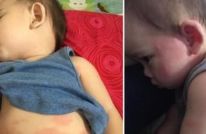 Cậu bé bị nổi ban đỏ, nôn mửa và tiêu chảy nghiêm trọng do uống sữa công thức giả