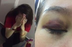 Hà Nội: Lời cầu cứu của cô gái bị bạn trai ngoại quốc đánh đập, tung clip