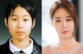 """Những ca phẫu thuật thành công của mỹ nhân Hàn: Đúng là không có gì là không thể, một bước """"vịt hóa thiên nga"""", lọt top gương mặt đẹp nhất thế giới"""