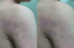 Hà Nội: Giáo viên lớp 1 bị tố đánh thâm tím toàn thân học sinh