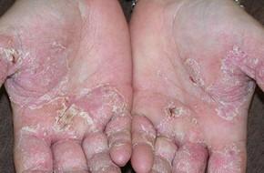 Mùa hè đến rồi, cẩn thận với 5 dấu hiệu cảnh báo ung thư da mà bạn có thể gặp phải