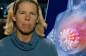 Nhờ liệu pháp miễn dịch, người phụ nữ này đã may mắn thuyên giảm căn bệnh ung thư vú giai đoạn cuối