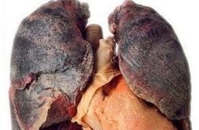 Ung thư phổi gây tử vong số 1: Những dấu hiệu cảnh báo sớm tuyệt đối không nên 'lờ đi'