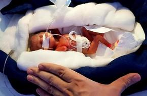 Bé gái sinh ra nhỏ xíu chưa bằng bàn tay, bác sĩ không dám tiên lượng điều gì thì 6 tháng điều kỳ diệu đã xảy ra