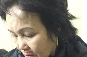 Đang tính tiền cho khách, một phụ nữ bị hành hung ngay tại quán ăn