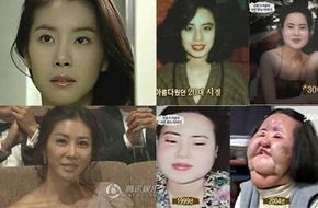"""Những mỹ nhân châu Á đang phải """"trả giá đắt"""" vì chạy theo phẫu thuật thẩm mỹ"""