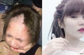 """Cô gái 17 tuổi bị cạo đầu đánh ghen do """"quan hệ nhầm"""""""