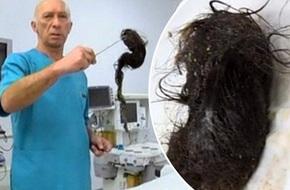Phát hiện khối u tóc khổng lồ nặng hơn 1kg trong bụng bé gái