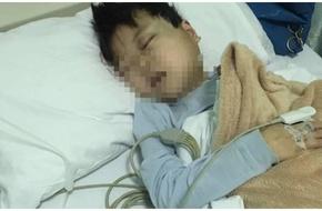 Cậu bé bị mù lòa sau khi hứng chịu 28 cái tát của giáo viên vì lý do không ai ngờ
