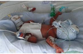 Dùng ảnh trẻ sơ sinh đã mất để quyên tiền trên mạng