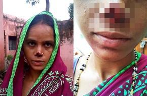 Chồng và mẹ chồng xông vào cắt mũi vợ vì chưa nhận được của hồi môn
