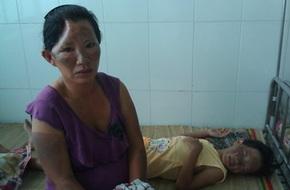 Nổ bếp gas mini, ba mẹ con nhập viện