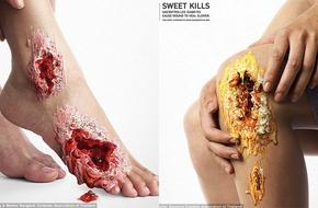 Bạn sẽ không còn dám ăn nhiều đường sau khi tận mắt nhìn thấy những hình ảnh này