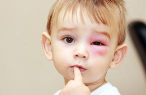 Trẻ bị mụn ngoài da do côn trùng đốt có thể nguy hiểm hơn cha mẹ nghĩ rất nhiều