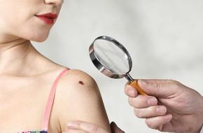 Chỉ số tia cực tím ở mức cực đỉnh: Những nguy hại khủng khiếp bạn phải biết để bảo vệ sức khỏe