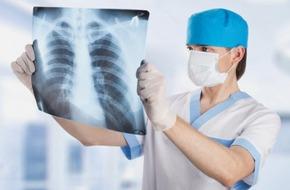 Bác sĩ chuyên khoa chỉ ra 3 điều mọi người nên biết về ung thư phổi