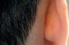 5 vị trí không ngờ có thể bị ung thư da