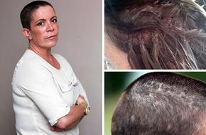 Gặp họa vì nối tóc bằng keo siêu dính