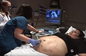 Thấy bụng nhiều vết thâm tím kỳ lạ, mẹ bầu đi khám và ngỡ ngàng khi nhận tin từ bác sĩ