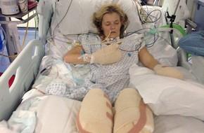 Bị viêm phổi, người mẹ trẻ phải cắt bỏ cẳng chân và ngón tay