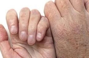 Đưa bàn tay lên ngay để xem bạn có những dấu hiệu của ung thư này không nhé!