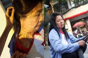 Nỗi oan nghiệt của người phụ nữ vá xe bị tạt axit đến mất 1 tai, mang sẹo nửa phần cơ thể