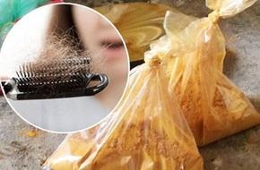 Phụ nữ rụng tóc, mọc râu khi bị ngộ độc thức ăn có chất cấm
