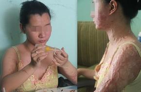 Những người phụ nữ vô tội bị hủy hoại dung nhan, mất đi tương lai và ám ảnh suốt đời vì axit