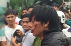 Thái Nguyên: Con trai dùng dao truy sát cả nhà khiến 2 người thương vong