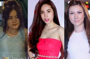 Những khuôn mặt 'sưng phù' vì mới thẩm mỹ đã xuất hiện của sao Việt