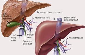 Việt Nam áp dụng thành công điều trị ung thư gan bằng hạt vi cầu phóng xạ Yttrium-90