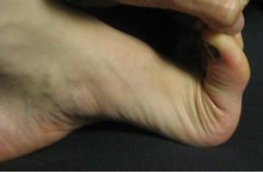 Phát hiện bệnh tim kịp thời nhờ chạm vào đầu ngón chân, việc rất cần làm do đã chuẩn bị vào mùa các ca đau tim tăng mạnh
