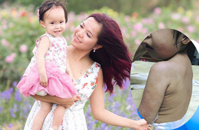 Hành trình chữa bệnh viêm da cơ địa cho con gái đầy giông bão của mẹ Việt ở Úc