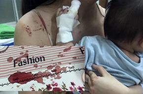 Thực hư bức ảnh tay bé gái 9 tháng tuổi be bét máu vì chuột cắn trong đêm
