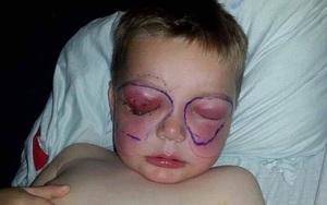 Chỉ sau một cú té, cậu bé 4 tuổi suýt mù và thậm chí mất mạng vì bị nhiễm vi khuẩn ăn thịt người