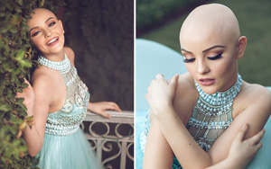 Cô gái 17 tuổi xinh như búp bê cắt trụi tóc để chụp ảnh, biết được sự thật ai cũng nể phục