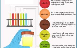 Nhìn màu sắc của nước tiểu đoán ngay những gì đang xảy ra bên trong cơ thể bạn