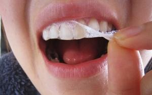 Sử dụng miếng dán làm trắng răng có thật sự tốt - Những điều chị em không thể không biết