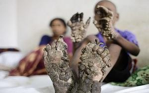 """Cậu bé mắc chứng bệnh lạ khiến tay chân biến thành """"vỏ cây"""""""
