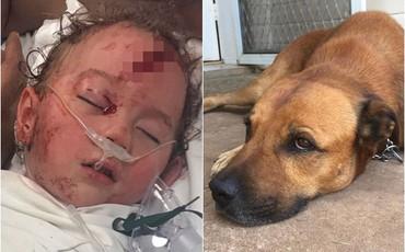 Cảnh báo khẩn sau vụ việc bé trai 2 tuổi bị chó nhà cắn rách đầu, phải khâu 42 mũi