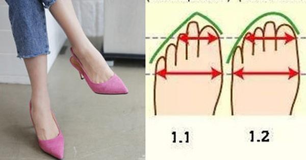 Nguyên nhân chẳng ngờ tới khiến bạn bị đau chân khi đi giày cao gót