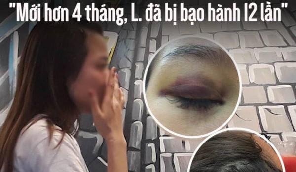 """Bạn thân của cô gái bị bạn trai ngoại quốc đánh đập: """"Mới hơn 4 tháng, L. đã bị bạo hành 12 lần"""""""