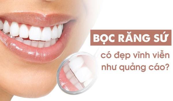 Bọc răng sứ có đẹp vĩnh viễn như quảng cáo?