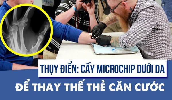 Thụy Điển: Cấy microchip dưới da để thay thế thẻ căn cước