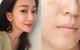 8 sản phẩm trị mụn và sẹo mụn mang lại hiệu quả cấp tốc cho làn da của bạn