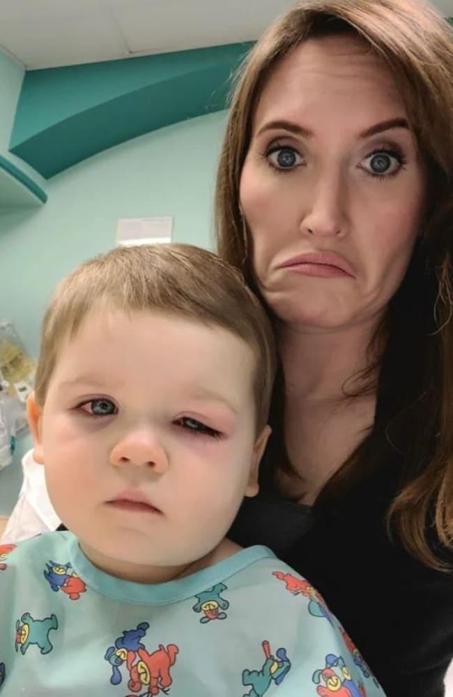Mẹ hoảng loạn tột độ khi con trai suýt bị mất đi thị lực bởi món đồ chơi quá đỗi quen thuộc - Ảnh 3.