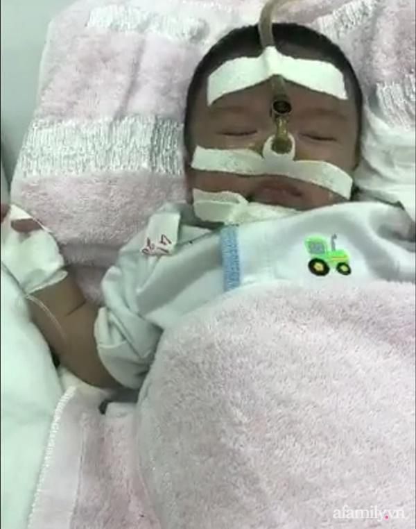 Màn lột xác ngỡ như kì tích của bé trai sinh non, từng được bác sĩ lắc đầu nói có ra nước ngoài cũng không cứu được - Ảnh 2.